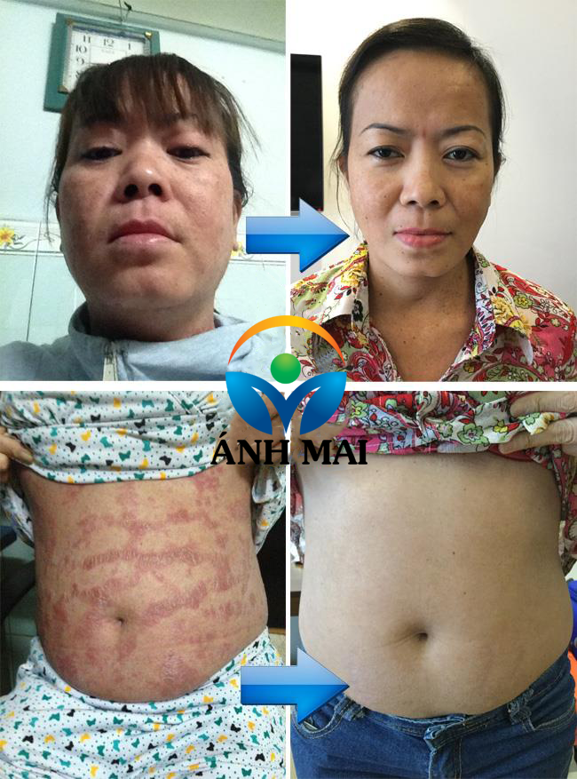 Cảm nhận của bệnh nhân vẩy nến Nguyễn Thị Thúy Hằng TP.HCM