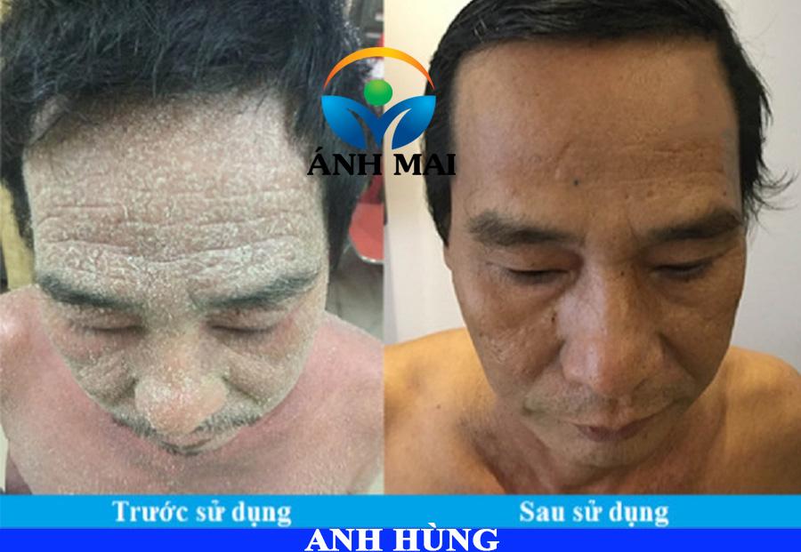 Bệnh nhân vẩy nến Tạ Phi Hùng TP.HCM