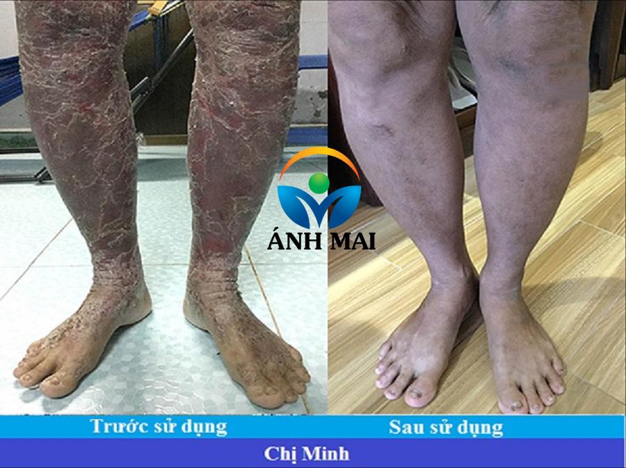 Bệnh nhân vẩy nến Nguyễn Thị Tường Minh