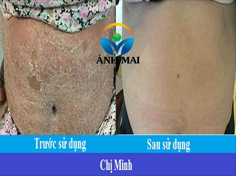 Cảm nhận bệnh nhân vẩy nến Nguyễn Thị Tường Minh – TP.HCM