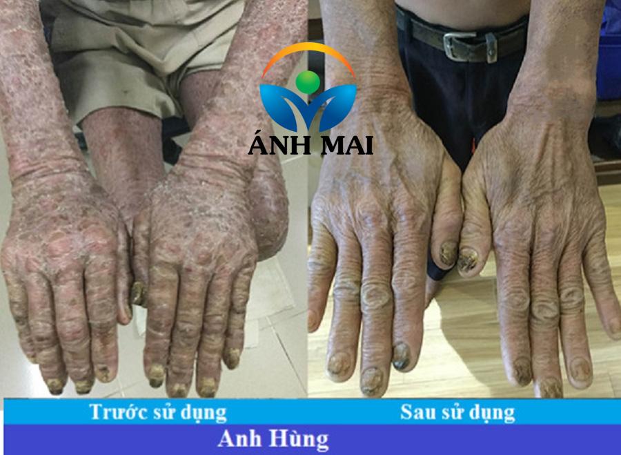 Bệnh nhân vẩy nến Tạ Phi Hùng