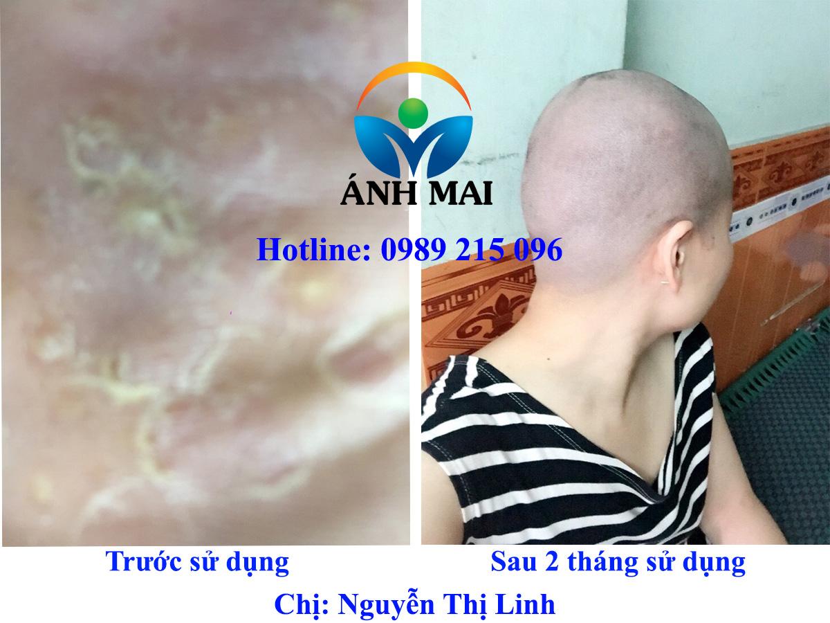 Cảm nhận của chị Linh, Quảng Ninh về Kem hoàn da Ami