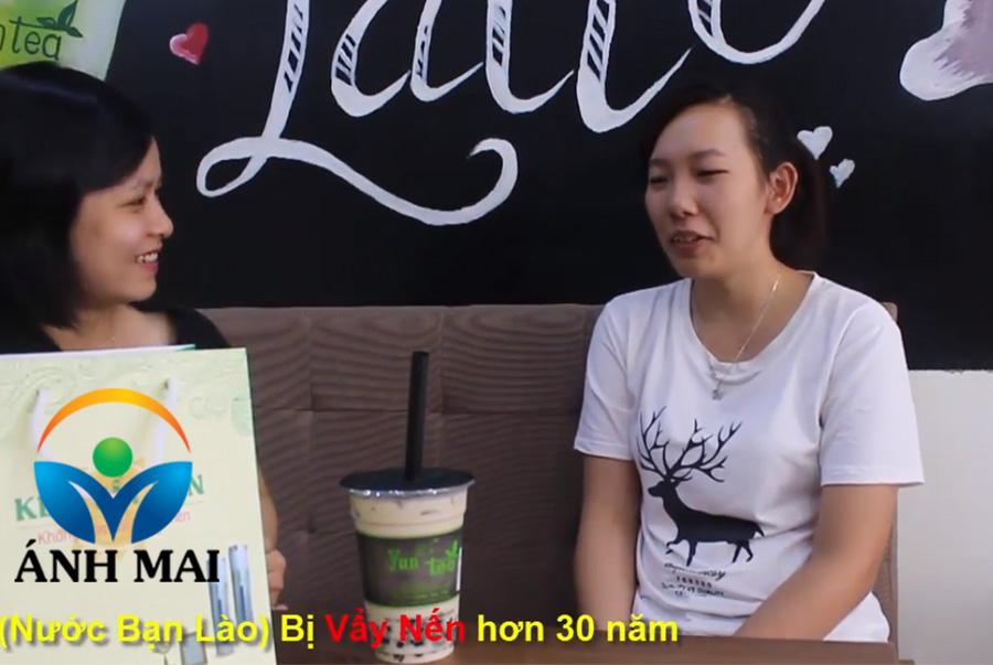 Cảm nhận của chị Outhong, CH DCND LÀO khi bố lành vẩy nến nhờ Kem hoàn da Ami