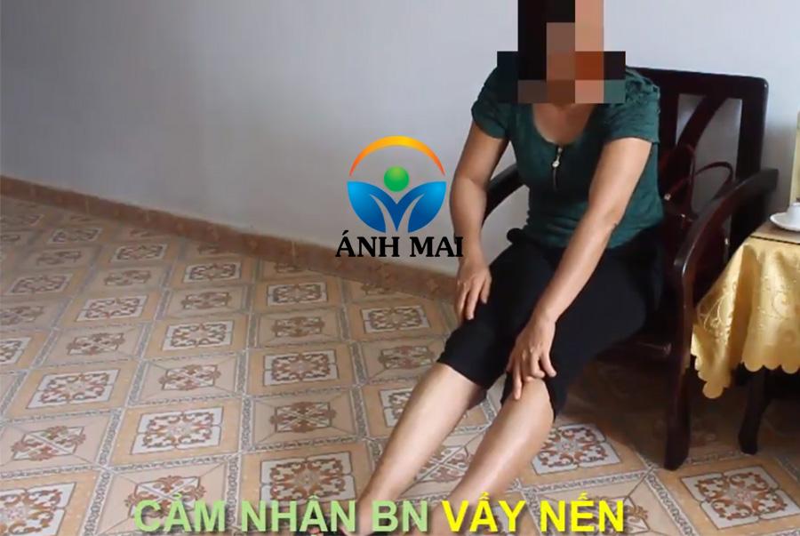 Cảm nhận của chị Lân, BN vẩy nến Sơn La về Kem hoàn da Ami