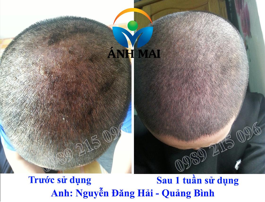 Hình ảnh trước và sau khi sử dụng Kem hoàn da Ami của BN vẩy nến Nguyễn Đăng Hải