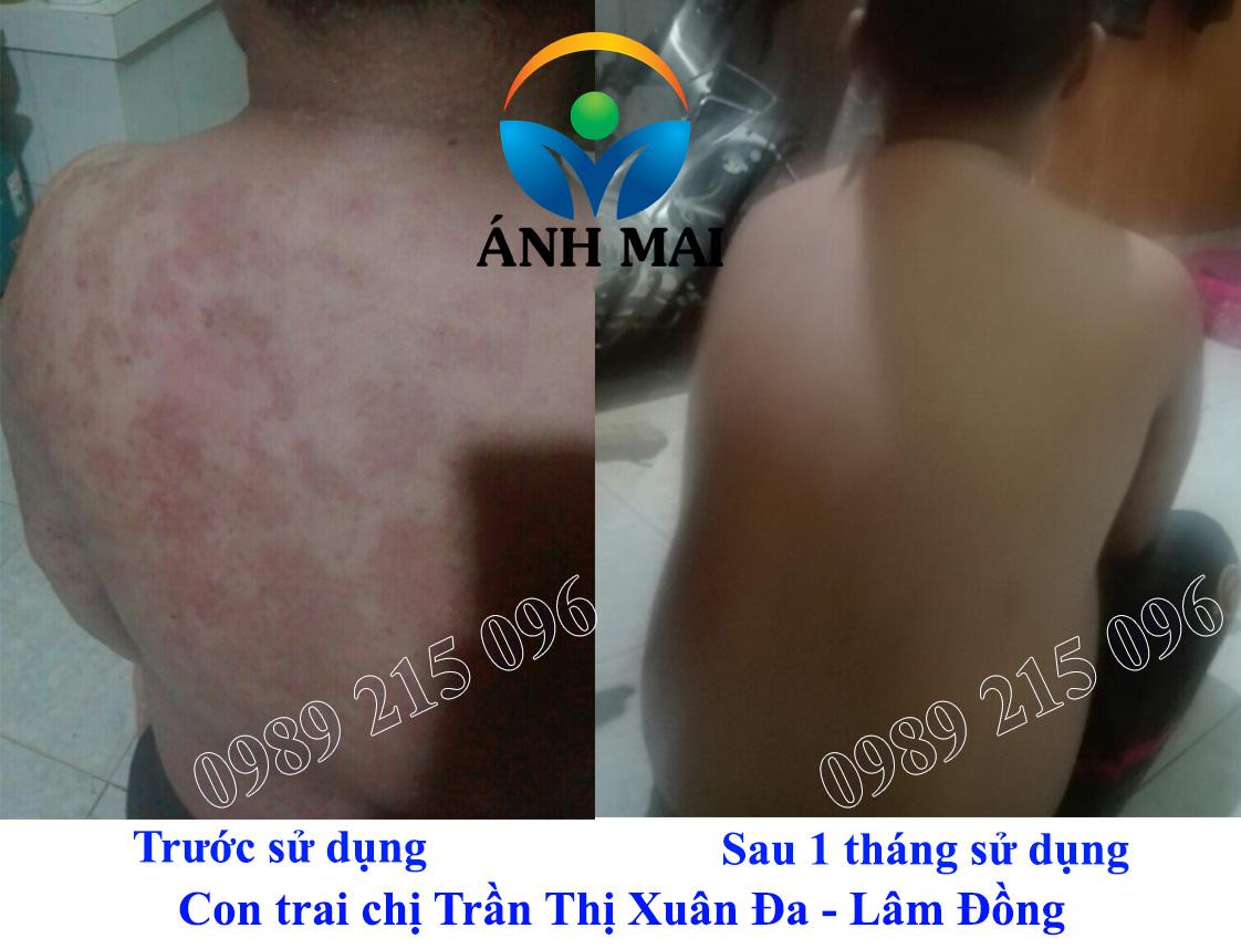 Con trai chị Trần Thị Xuân Đa, Bảo Lộc, Lâm Đồng