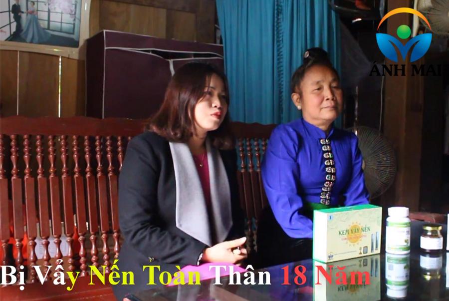 Cảm nhận của chị Cười, con dâu BN vẩy nến Lò Thị Lả, Sơn La