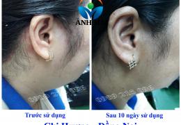 Cảm nhận của chị Hương, Đồng Nai sau khi sử dụng Kem hoàn da Ami