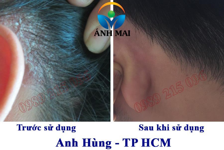 Hình ảnh trước và sau sử dụng Kem hoàn da Ami của anh Hùng, TP HCM