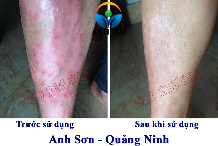 Hình ảnh anh Sơn, Quảng Ninh trước và sau khi sử dụng Kem hoàn da Ami