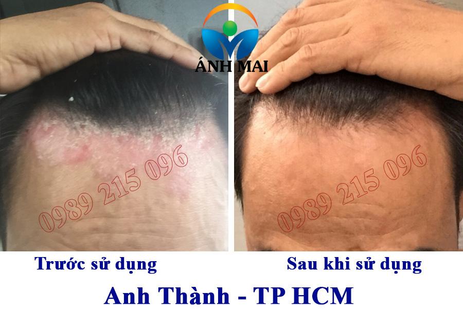 Hình ảnh trước và sau khi sử dụng Kem hoàn da Ami của anh Thành, TP HCM