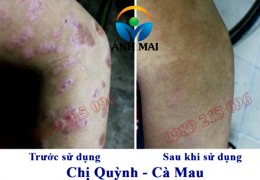 Cảm nhận của chị Quỳnh, Cà Mau sau khi sử dụng Kem hoàn da Ami