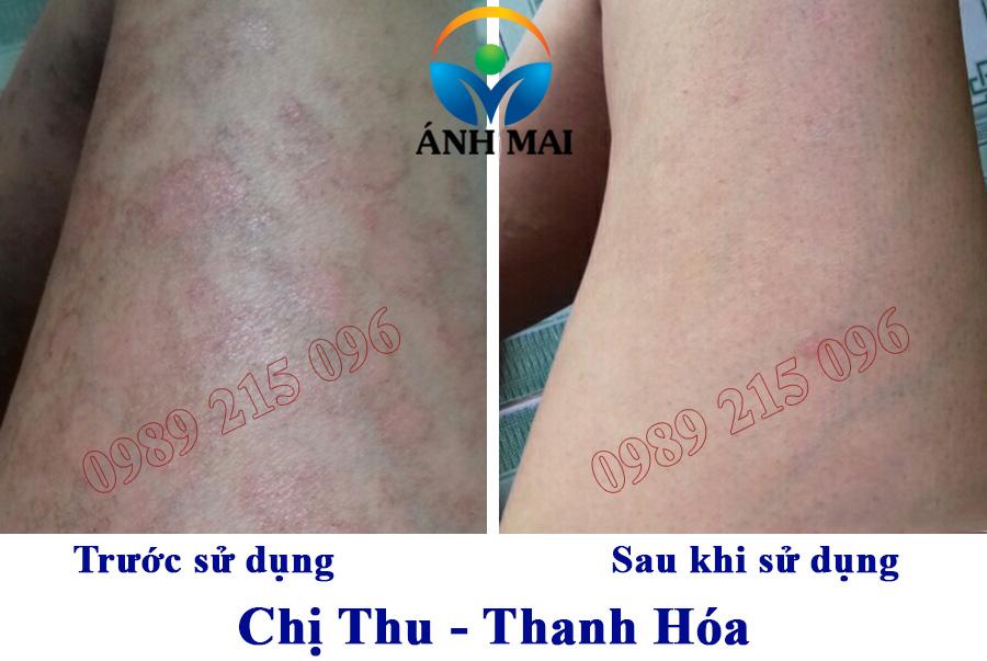 Hình ảnh trước và sau khi sử dụng Kem hoàn da Ami của chị Thu, Thanh Hóa