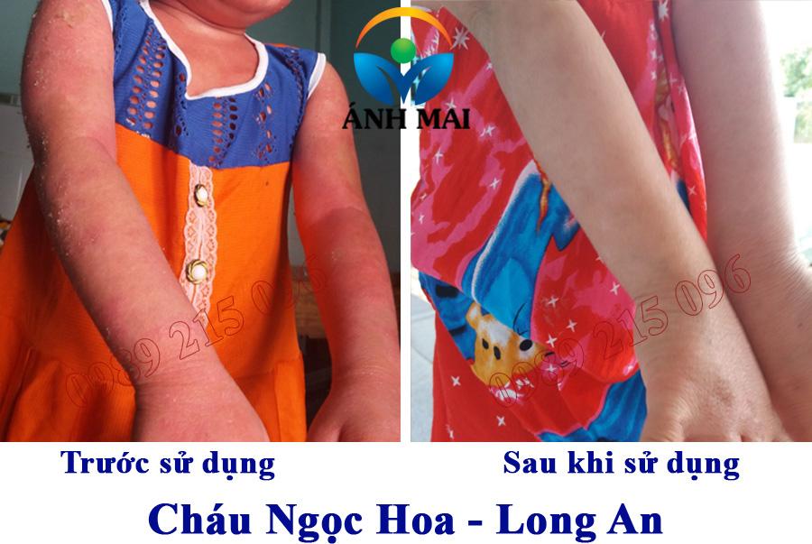 Hình ảnh trước và sau sử dụng Kem hoàn da Ami của cháu Hoa, Long An