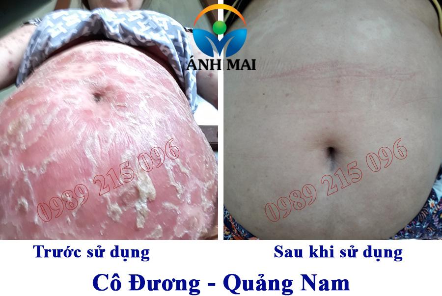 Hình ảnh trước và sau SD Kem hoàn da Ami của cô Đương, Quảng Nam