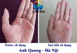 Câu chuyện lành viêm da cơ địa của anh Quang, Hà Nội