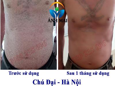 Hình ảnh trước và sau khi sử dụng Kem hoàn da Ami của chú Đại, Đông Anh