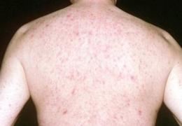 Vẩy nến và ung thư da có mối liên hệ như thế nào?