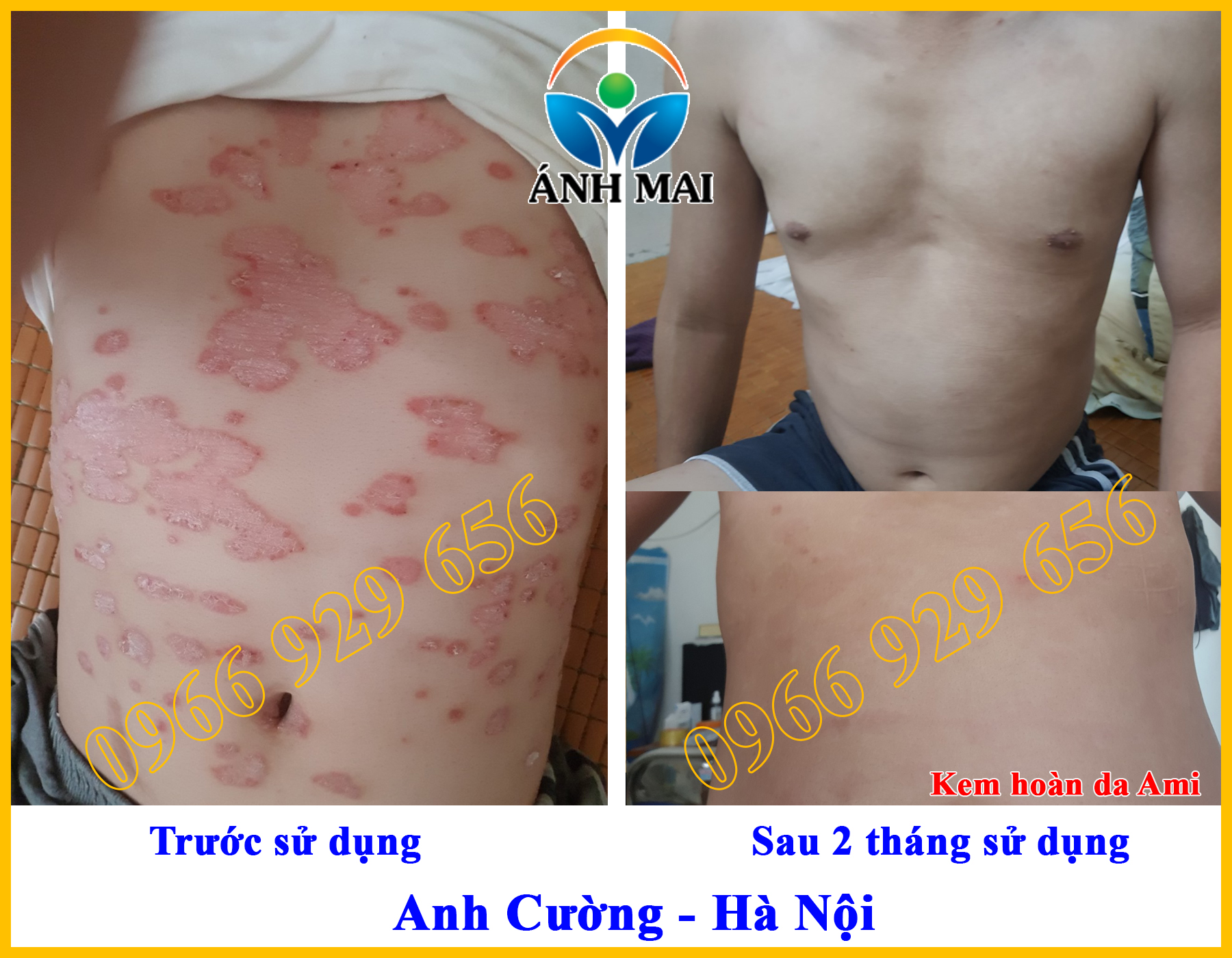 Hình ảnh trước và sau khi sử dụng Kem hoàn da Ami của anh Cường, Hà Nội