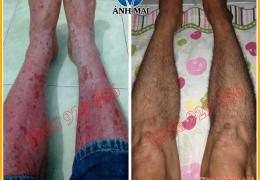 Hình ảnh trước và sau khi sử dụng Kem hoàn da Ami của anh Khánh, Bình Thuận