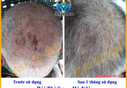 Hình ảnh trước và sau khi sử dụng Kem hoàn da Ami của chị Bùi Thị Sơn, Hà Nội