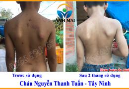 Hình ảnh trước và sau khi sử dụng Kem hoàn da Ami của cháu Nguyễn Thanh Tuấn, Tây Ninh