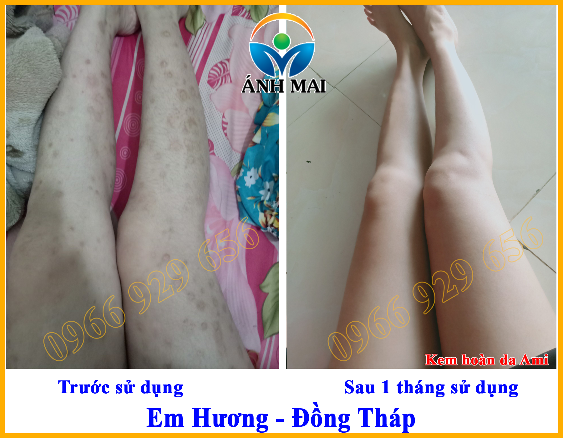 Hình ảnh trước và sau khi sử dụng Kem hoàn da Ami của em Hương, Đồng Tháp