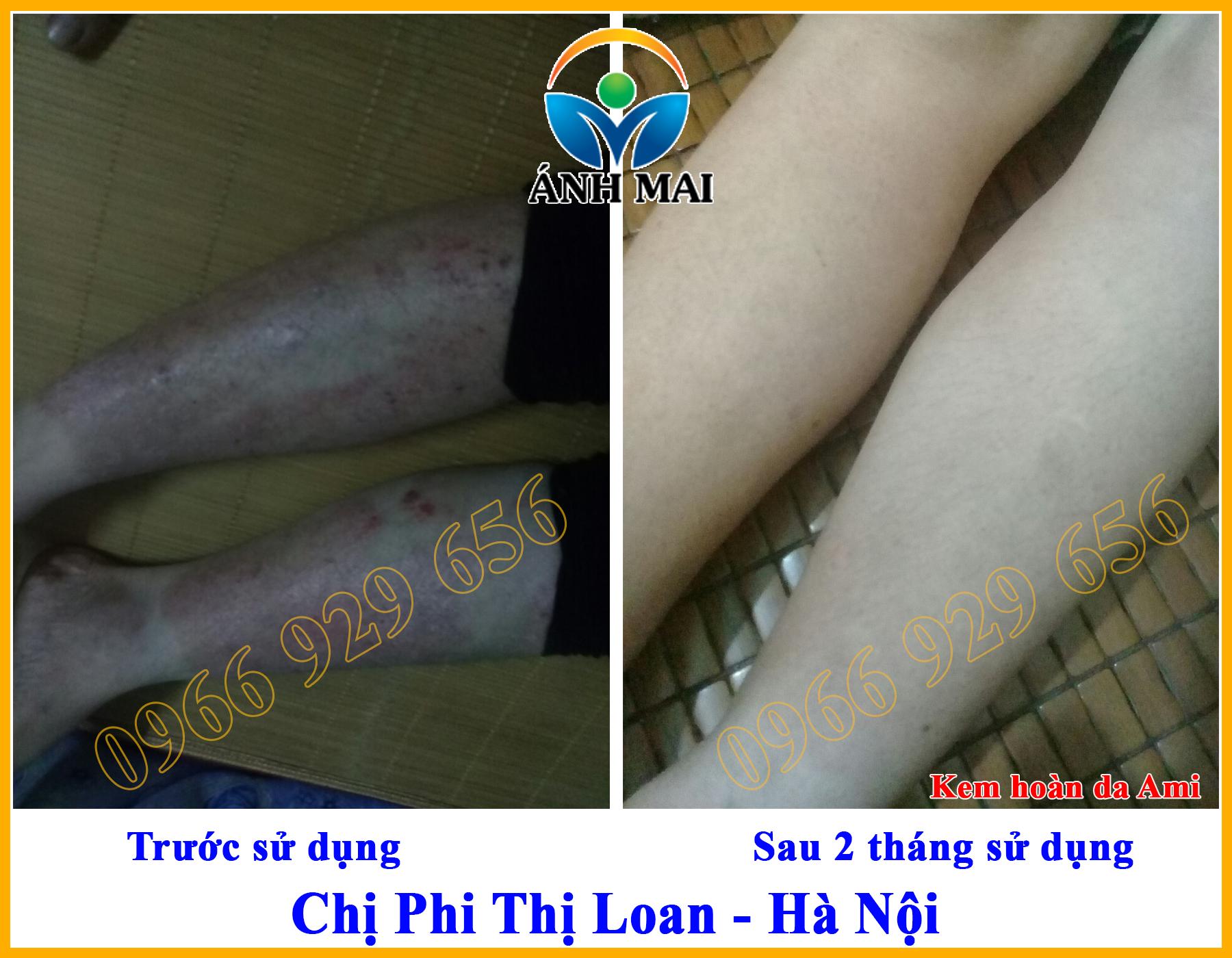 Hình ảnh trước và sau khi sử dụng Kem hoàn da Ami của chị Phi Thị Loan, Hà Nội