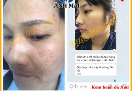 Hình ảnh trước và sau khi sử dụng Kem hoàn da Ami của chị Trần Ngọc, Đắk Nông