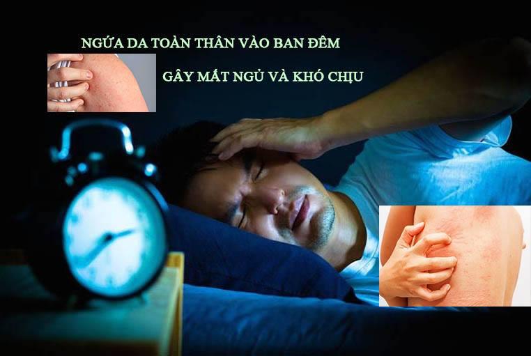 Ngứa da toàn thân vào ban đêm có phải bệnh nguy hiểm không?