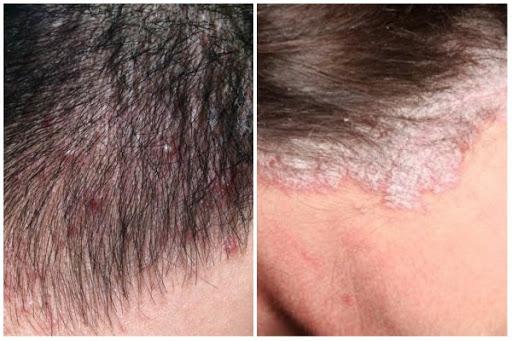 Chia sẻ một số cách trị ngứa da đầu