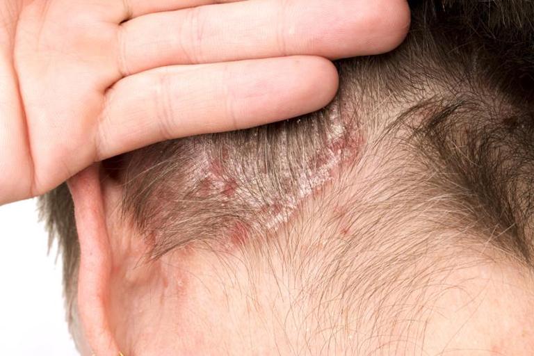 Chữa vảy nến da đầu có khó không?
