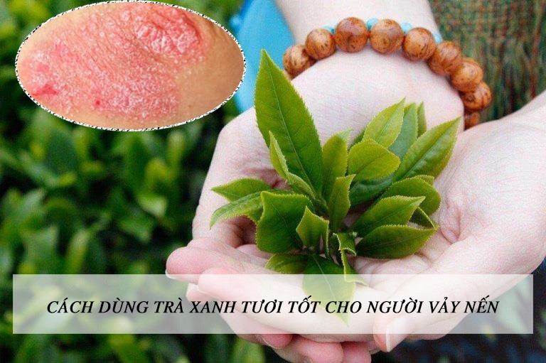 Cách sử dụng trà xanh tươi tốt cho người bị vảy nến