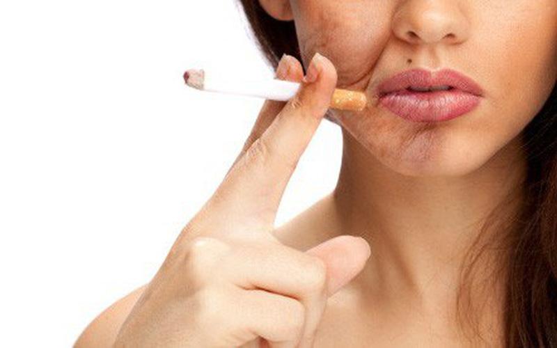 Tác hại của hút thuốc lá với người vảy nến