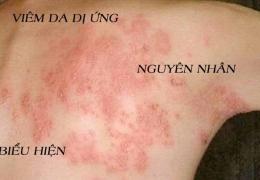 Viêm da dị ứng – biểu hiện và nguyên nhân gây bệnh