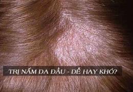 Trị nấm da đầu – dễ hay khó?