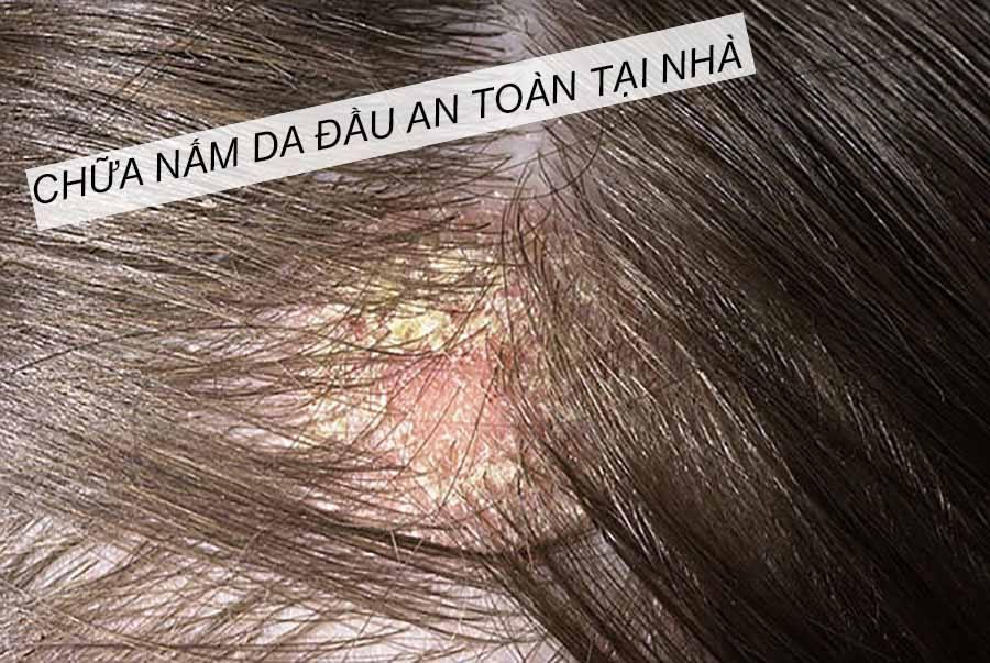 Cách chữa nấm da đầu tại nhà an toàn