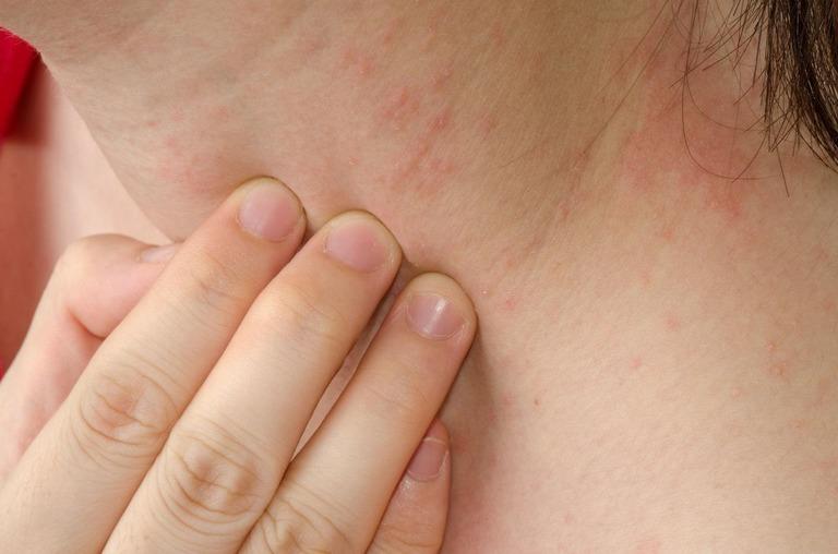 Bị ngứa da là mắc bệnh gì? có nguy hiểm không?